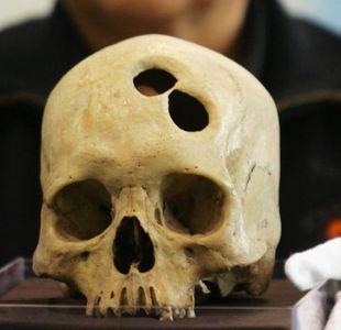 Qué hacía que los incas fueran tan brillantes en cirugía craneal
