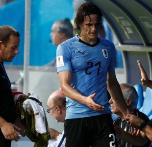 En Uruguay dan por hecho que Edinson Cavani no será titular ante Francia en Rusia 2018