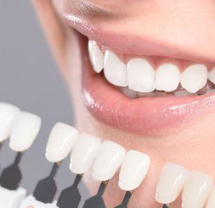 Los consejos para una sonrisa divina del Doctor Bill, el dentista de los famosos de Hollywood