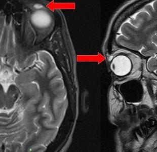 El caso de una mujer a la que le hallaron un lente de contacto en el párpado después de 28 años