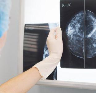 OMS advierte sobre alarmante crecimiento del cáncer en el mundo