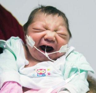 Virus del Zika en Brasil: el relato de las madres de los bebés que nacieron con microcefalia