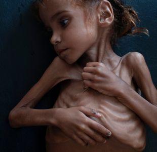 Muere Amal Hussain, símbolo de la hambruna infantil en Yemen