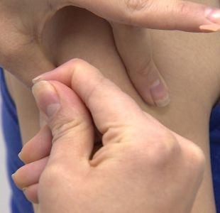 [VIDEO] Confirman caso de sarampión importado