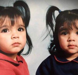 La conmovedora historia de dos gemelas cuya vida cambió por un terrible accidente