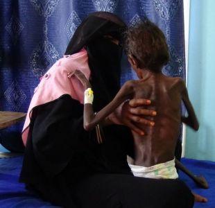 Guerra en Yemen: 3 condiciones para la paz en uno de los conflictos más sangrientos del mundo hoy