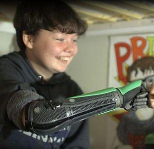 Brazo robótico le devuelve la confianza a los niños amputados