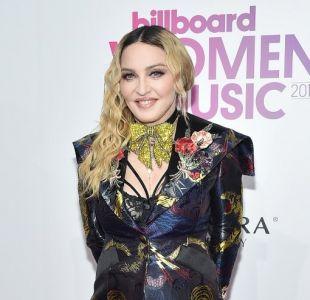 El mundo especula sobre una reciente cirugía de Madonna y así respondió la reina del pop