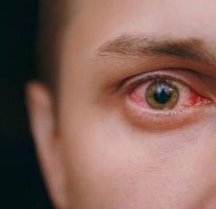 Parásito de los párpados podrían ser la causa de los ojos rojos