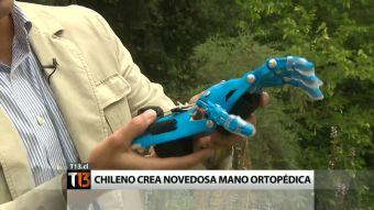 [T13] La historia del fisiólogo chileno que diseñó revolucionaria mano ortopédica