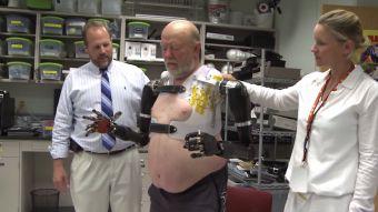 [VIDEO] 40 años después de perder sus 2 brazos este hombre manejó prótesis con el cerebro