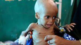[VIDEO] La agonía de los niños desnutridos que no tienen fuerza ni para llorar