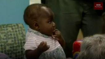 [VIDEO] La bebé a la que extirparon un gemelo parasitario que no llegó a desarrollarse