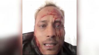 [VIDEO] Califican como ejecución extrajudicial la muerte del policía rebelde Óscar Pérez