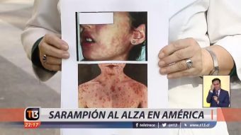 [VIDEO] Sarampión al alza en América