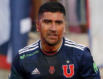 [FOTOS] Igual siguió jugando: Patadón en la cabeza deja sangrando a Pizarro