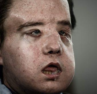 [VIDEO] El hombre de tres caras que durante dos meses vivió sin rostro en un hospital