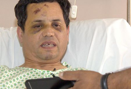 [VIDEO] Habla chofer herido por cornisa en el Paseo Ahumada