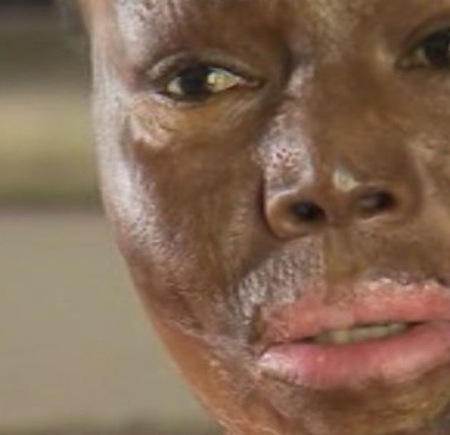 Él me lanzó la gasolina: el drama en el país donde 3 mujeres mueren o son abusadas al día